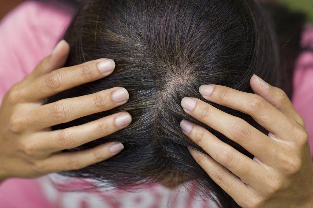 cuir cheveux sain cheveux boucles crepus